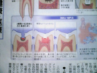image/kitaoka-2006-03-26T19:41:33-1.jpg